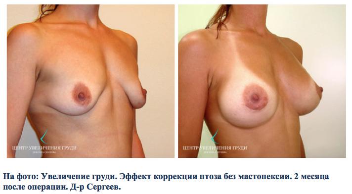 Увеличение груди. Эффект коррекции птоза без мастопексии. 2 месяца после