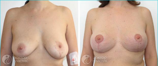 Шалфей на увеличение груди