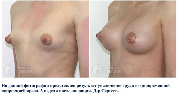 Купить крем для увеличения бюста в интернет магазине