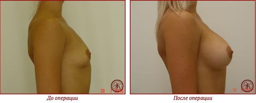 Сколько можно поднимать после операции по увеличению груди