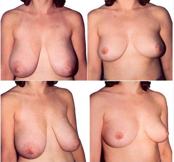 Пластика по уменьшению груди (редукционная. маммопластика. Функциональные
