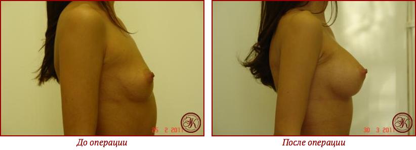 Страх перед операцией по увеличению груди