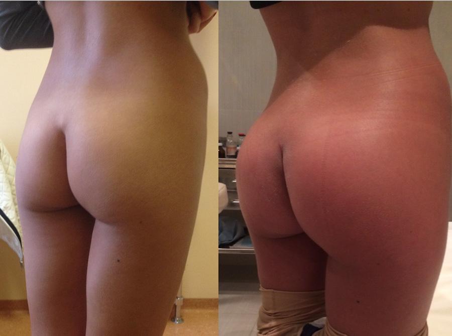 член в попе фото до и после