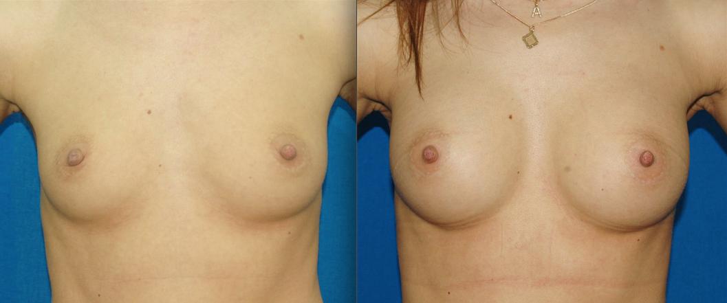 Какие гормональные средства увеличивают грудь