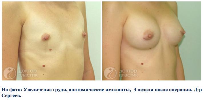 Операций по увеличению груди