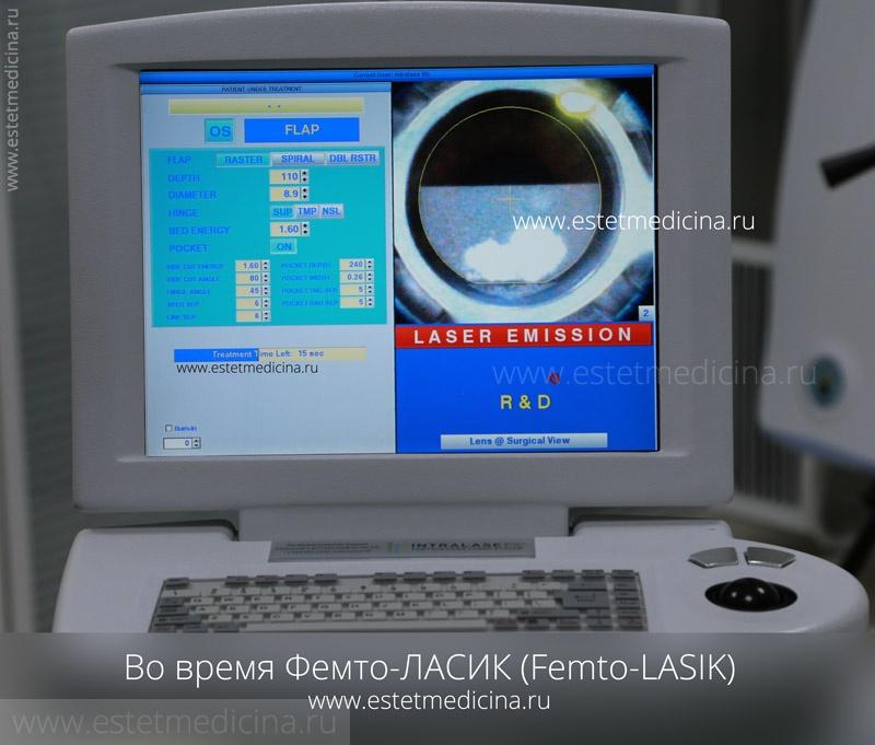 Femto-LASIK Фемто-Ласик