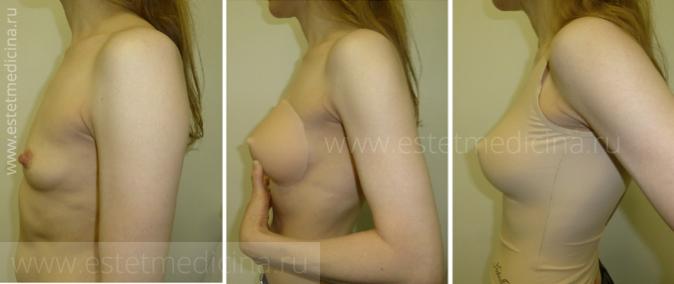 Что нужно пить для того чтобы увеличить грудь