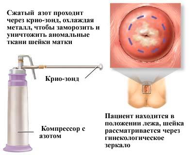 pri-eroziya-sheyki-matki-seks