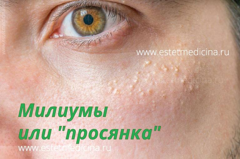 Жировики на лице причины возникновения и лечение