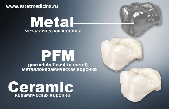 Что лучше металлические, металлокерамические или керамические коронки?