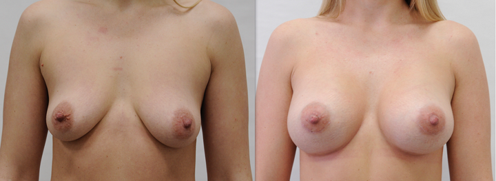 Противозачаточные таблетки увеличения груди отзывы