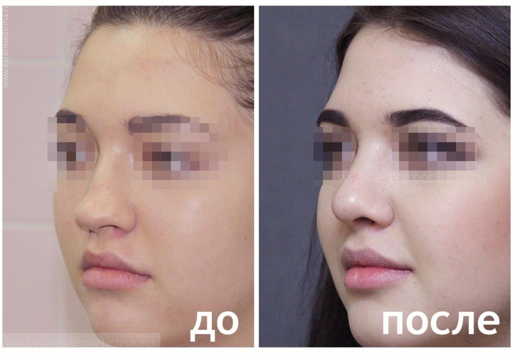 Кашманов андрей евгеньевич ринопластика отзывы