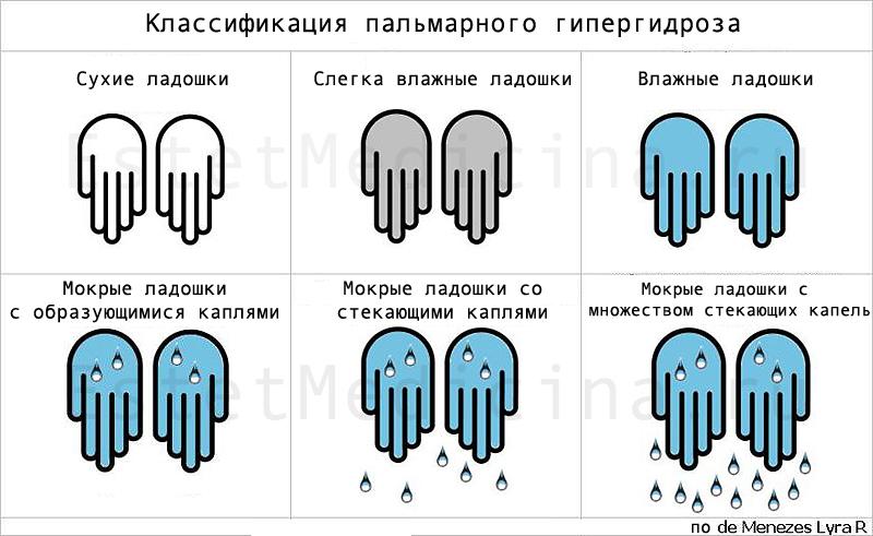 Симпатэктомия