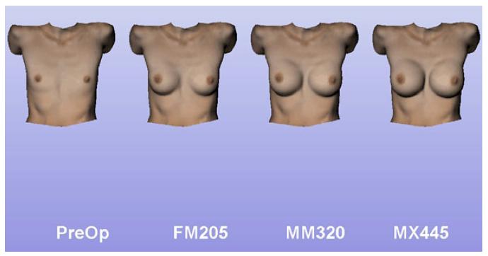 3d FORM позволяет пациентке заранее увидеть, как будет выглядеть ее грудь с