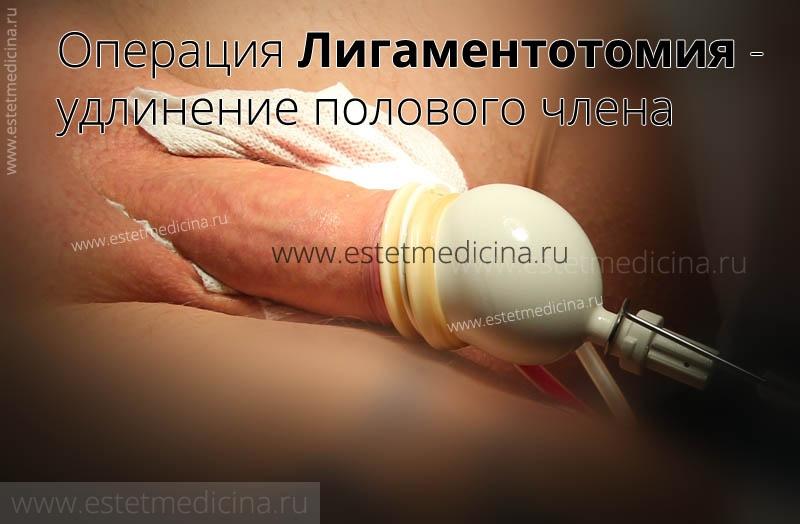 Форум увеличение полового члена без операций