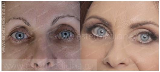 блефаропластика и чек-лифтинг (подтяжка средней зоны лица) фото до и после