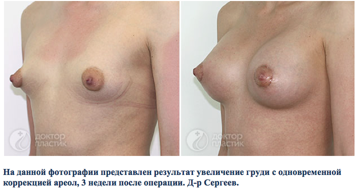 формы сосков маленькой груди фото