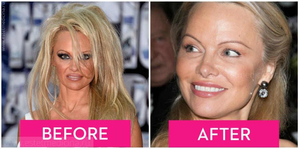 мастопексия до и после фото