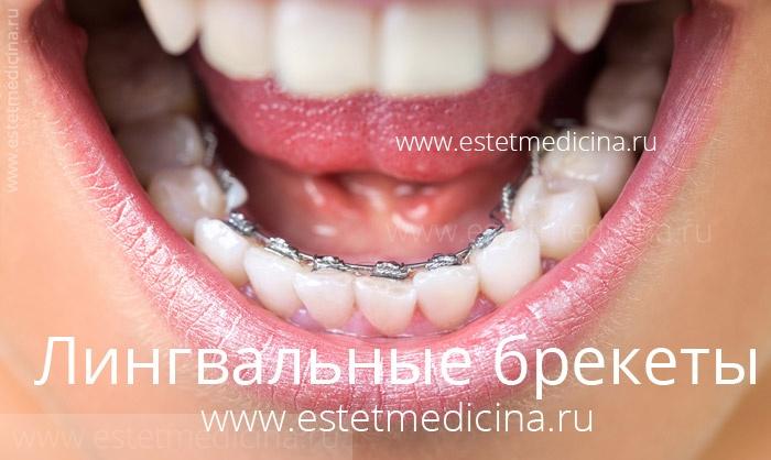 Лингвальные брекеты, брекеты с внутренней стороны зубов