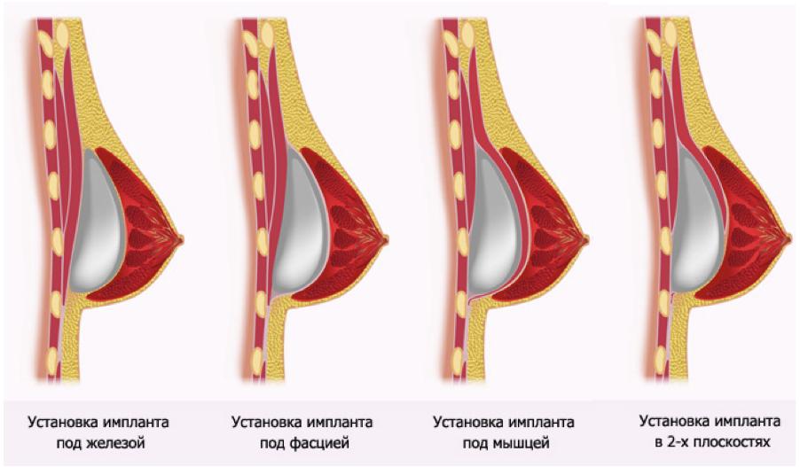 На сколько размеров можно увеличить груди без.