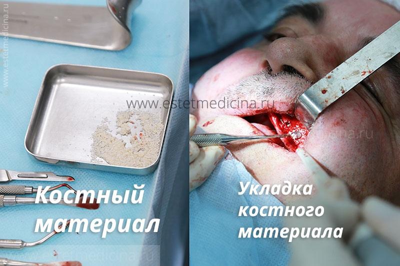 Костный материал и его укладка, имплантация зубов