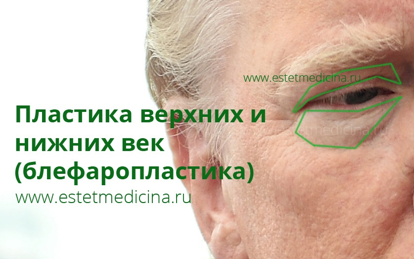 липосакция днепропетровске