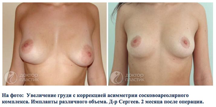 Большая грудь и маленькая попа