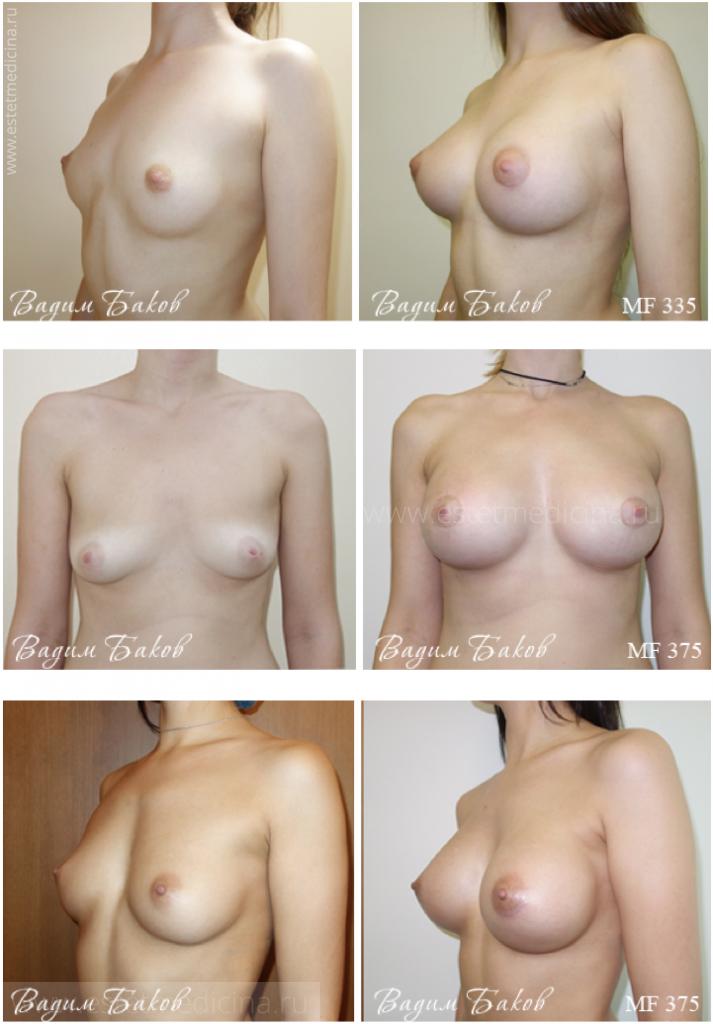 Увеличение груди в екатеринбурге клиника