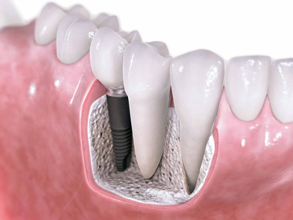 Зубные импланты цены в алматы