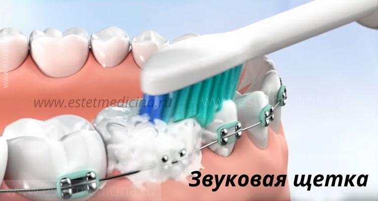 Звуковая зубная щетка отзывы