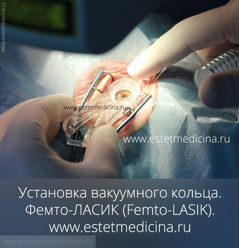 вакуумное кольцо - присоска, фемто-ласик
