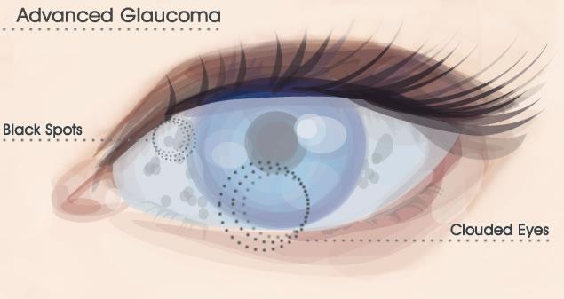 Глаукома другая