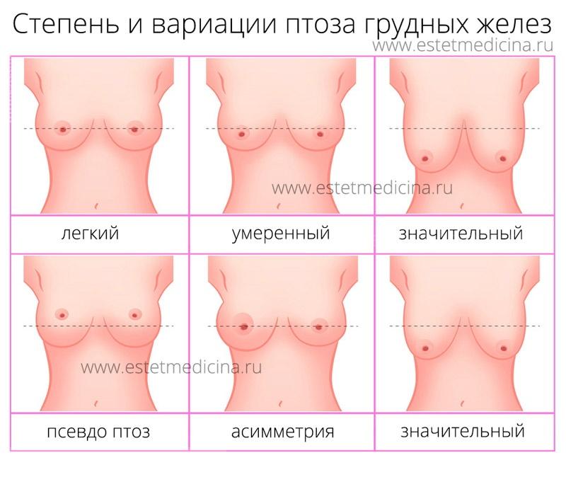 Степень опущения (птоза) грудных желез