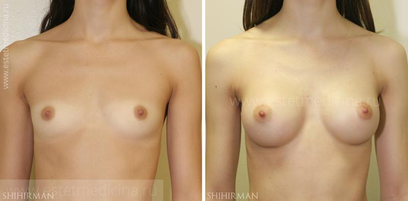 увеличение груди в сша