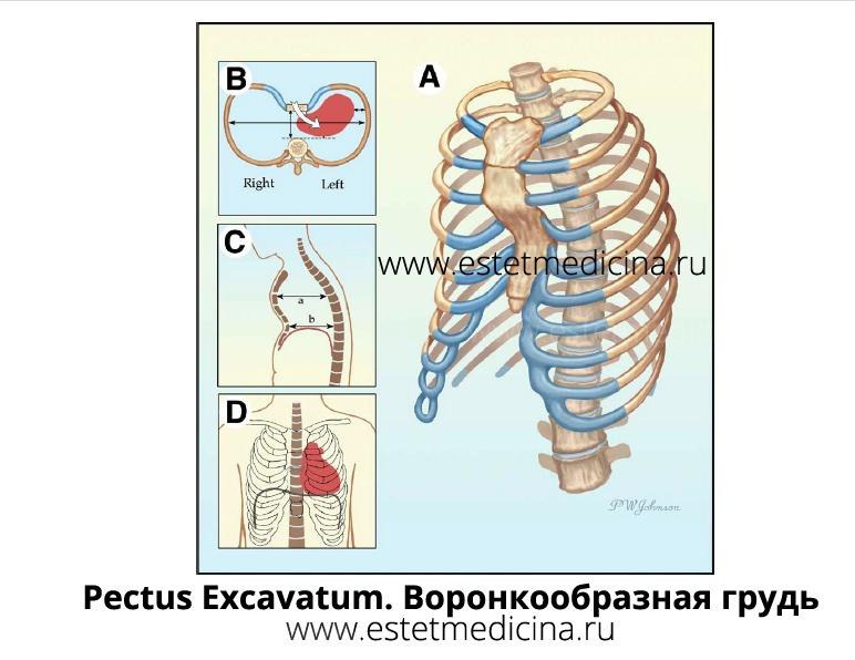 pectus excavatum, воронкообразная грудная клетка, воронкообразная грудь