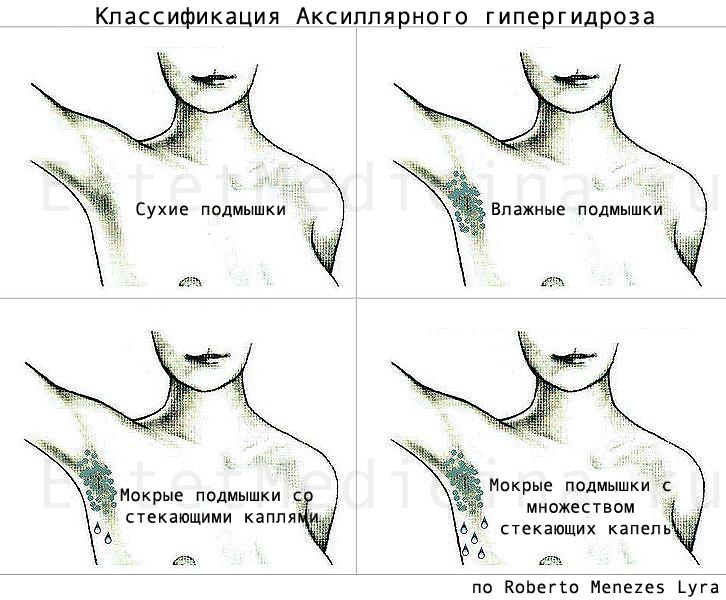 Кюретаж гипергидроз
