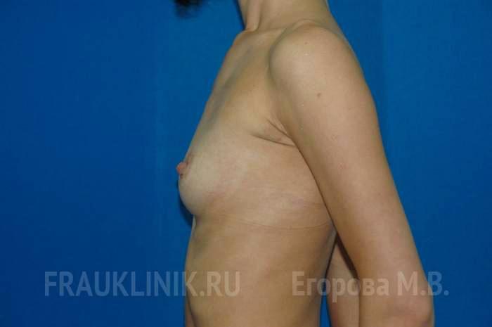 Отзывы по Крем для увеличения груди Гуам