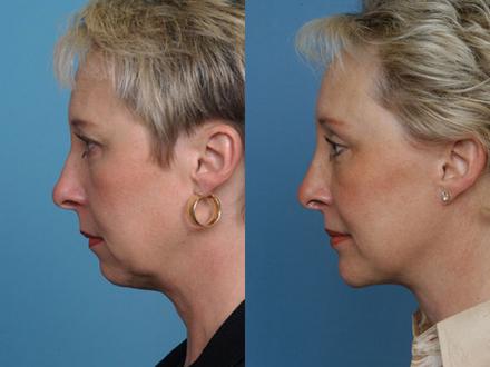 клиника по увеличение грудных желез уфа