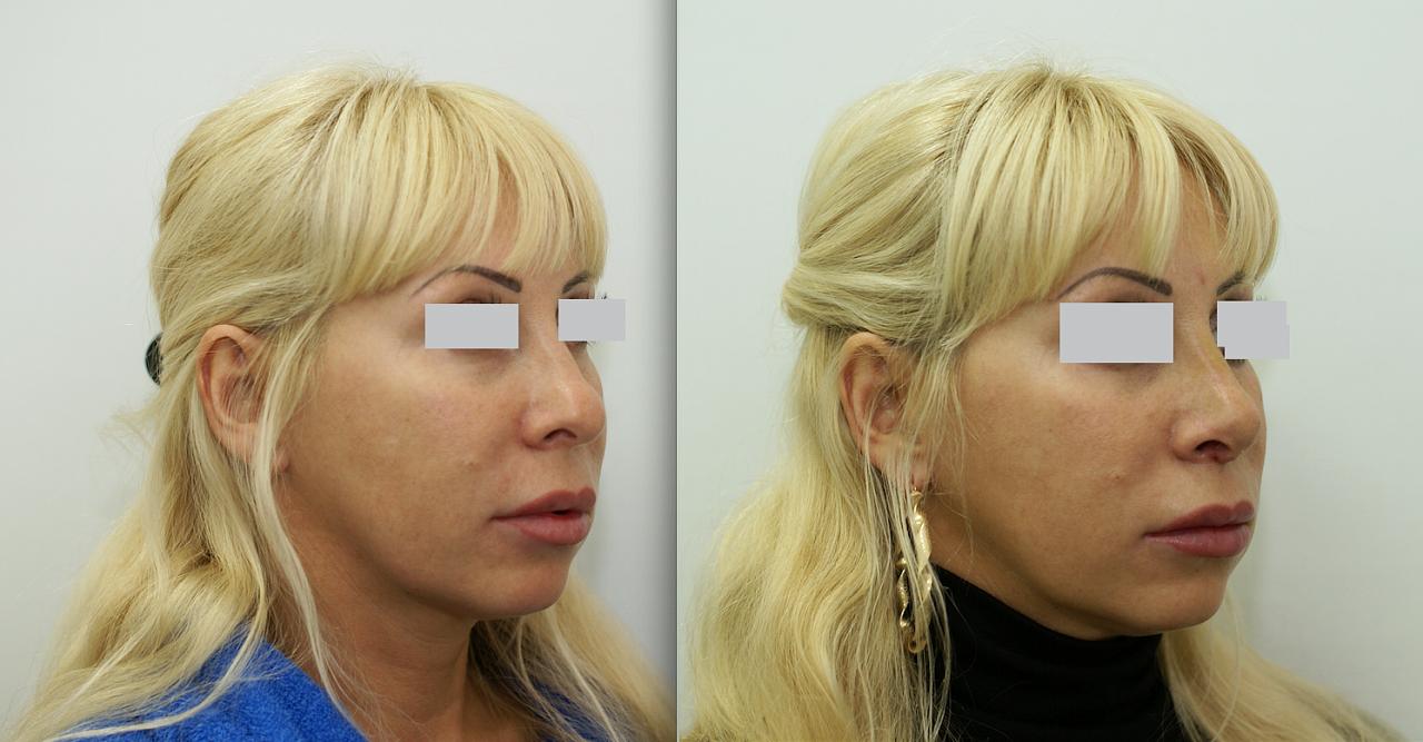 Пластические операции на нос в дагестане