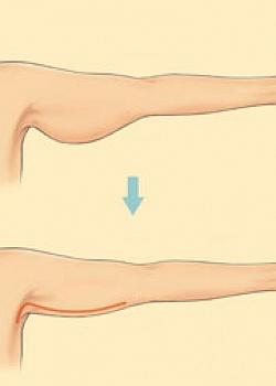 Форум пластической операции грудь